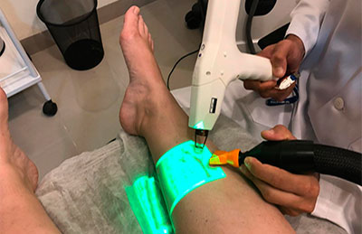 Tratamento com Laser Transdérmico