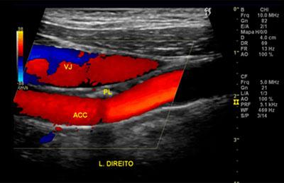 Ultrassom Vascular em Goiânia